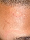 Pediatric Facial Rashes