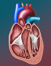 Percutaneous Closure of Atrial Septal Abnormalities Including Patent Foramen Ovale for Cryptogenic Stroke
