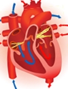 Expanding Treatment Options for Treating Atrial Fibrillation Rate Control, Rhythm Control, New Devices, and New Therapies