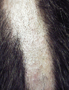 Trunk rashes Depigmentation on the chest and nail folds Recentonset hair loss