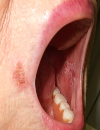 White plaques in the oral cavity Extremely pruritic rash on the back and chest Facial pustules after radiation treatment
