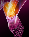 A 58 Year-Old Female Complains of Joint Pain and Fatigue