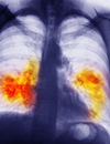 Crizotinib Benefits in NSCLC Explored, Including in Patients with ROS1 Gene Rearrangement and with Ablative Local Therapy