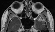 Acoustic neuroma: clinical review