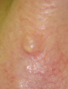 Hyperpigmented cheek patches Chest papule turns red when rubbed Painless, nongrowing nasal lesion