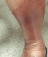 Plaques on the lower extremities Discoloration worsens following sun exposure Arm ulcer on a Latin American immigrant