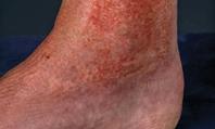 Diagnostic Forum: Psychodermatology - Diagnosis of artefactual skin disorders