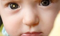 Recognising retinoblastoma