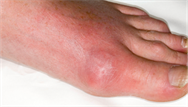Managing gout