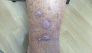 Blistering rash in the groin; Itchless trunk papules; Keratotic shin lesions