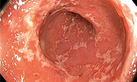Ulcerative colitis: clinical review