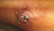 Annular Eruption on the Leg; Scaly Plaques; Crateriform Nodule; Chest Papules