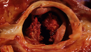 Infective endocarditis: clinical review