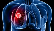 Post-ASCO 2014 Quality-Focused Options for Practice for Lung Cancer