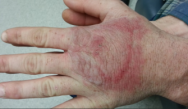 Long-term Scaly Skin; Patchy Hair Loss; Solitary Dorsal Hand Plaque