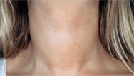 Hypothyroidism: clinical review