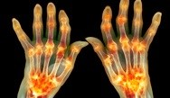 Psoriatic Arthritis and Updates for the Practicing Clinician