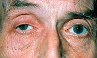 Diplopia - red flag symptoms