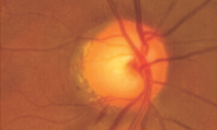Glaucoma: clinical review