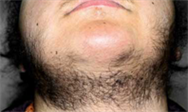 Therapeutic forum: Diagnosis and treatment of hirsutism