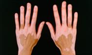 Management of patients with vitiligo
