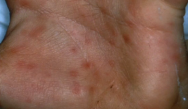 Dermatologic Manifestations of the Biowarfare Agents
