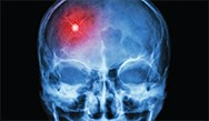 MediBrief: The Stroke Treatment Window - A Yearly Quality Review
