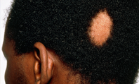 Alopecia: clinical review