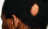 Alopecia: clinical review