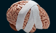 Concussion in Sport - The Latest in Diagnosis and Management
