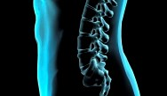 Managing Spine Problems in Primary Care