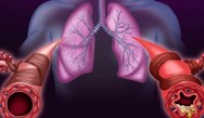 Optimizing Treatment in COPD Patients
