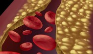 Clinical Trials Targeting PCSK9 for Treatment of Hyperlipidemia