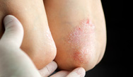 Not Just Skin-Deep: Psoriasis Part 2