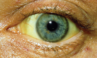 Jaundice - red flag symptoms