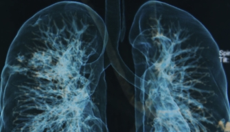 Lung Function Declines in COPD After Steroid Withdrawal