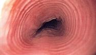 Eosinophilic Esophagitis: A Chronic Inflammatory Disorder