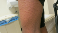 Scaling Rash on the Palms; Maculopapular Rash After Swimming; Scaly Rash