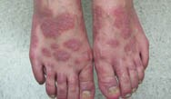 Psoriasis: An Overview of Current and Emerging Medications