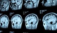Psychiatry ABPN Question Bank (40 CME / MOC Credits)