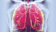 A Patient-Centered Approach in the Management of COPD- Q&A Session