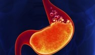 PPIs Tied to Increased Risk for Chronic Kidney Disease