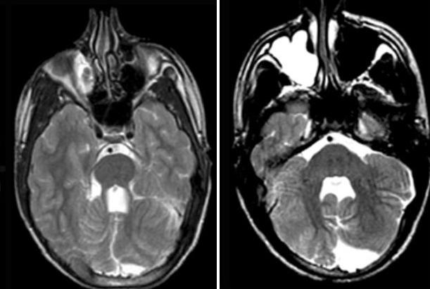 Radiology ABR Exam Question Bank - myCME com