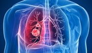 Transforming Emerging Lung Cancer Immunotherapy Science into Practice