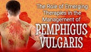 The Role of Emerging Therapies in the Management of Pemphigus Vulgaris