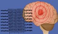 Update on Novel Antiepileptic Drugs in Treatment of Epilepsy