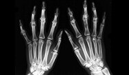 Rheumatoid Arthritis: The Key Role of Primary Care