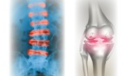 Biological Therapies for PsA, Osteoarthritis, SLE and Spondyloarthritis: Comparative Effectiveness Based on Treatment Profiles and ACR/EULAR Recommendations