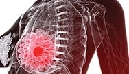 Practice Changing Treatment With CDK 4/6 Inhibitors for Hormone Receptor-Positive Breast Cancer