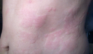 Step-Care Approach to Diagnosis/Management of Chronic Urticaria